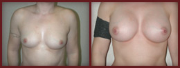 breast augmentation before and after case