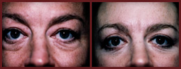 blepharoplasty before and after case