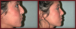rhinoplasty before and after case